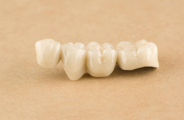 Dental Bridges in Millbrae, CA - Donald Yang DDS