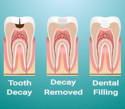 Dental Fillings in Millbrae, CA - Donald Yang DDS