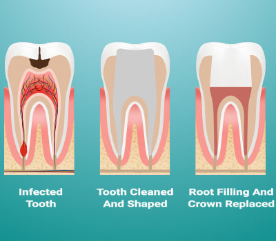 Root Canal Therapy in Millbrae, CA - Donald Yang DDS
