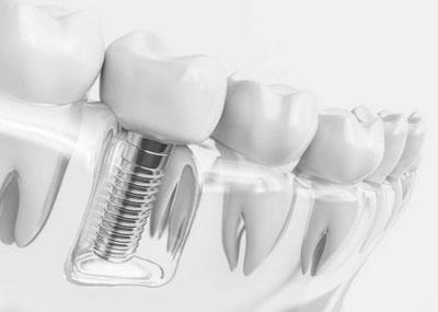 Dental Implants in Millbrae, CA - Donald Yang DDS